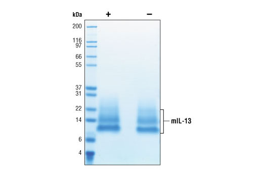 Image 2: Mouse Interleukin-13 (mIL-13)
