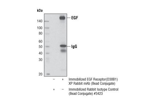 Monoclonal Antibody - EGF Receptor (D38B1) XP® Rabbit mAb (Sepharose® Bead Conjugate), UniProt ID P00533, Entrez ID 1956 #5735, Egfr
