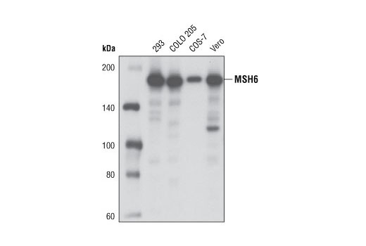 Western blot analysis of extracts from various cell types using MSH6 (D60G2) XP<sup>®</sup> Rabbit mAb.