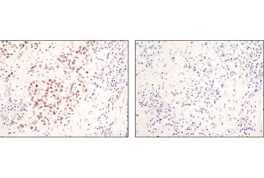 Monoclonal Antibody - Mouse (G3A1) mAb IgG1 Isotype Control - 250 µg #5415 - Secondary Antibodies