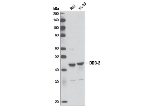 Western blot analysis of extracts from Raji and HL-60 cells using DDB-2 (D4C4) Rabbit mAb.