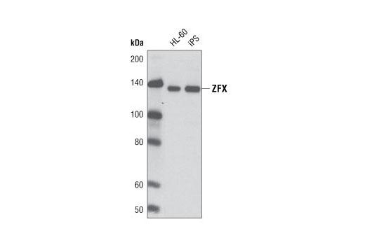 Monoclonal Antibody - ZFX (L28B6) Mouse mAb - Western Blotting, UniProt ID P17010, Entrez ID 7543 #5419 - #5419