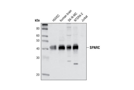 Western blot analysis of various cell extracts using SPARC Antibody. Jurkat are negative, as expected.