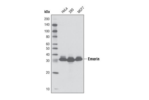 Monoclonal Antibody - Emerin (D9B3) Rabbit mAb - Immunoprecipitation, Western Blotting, UniProt ID P50402, Entrez ID 2010 #5430 - Primary Antibodies