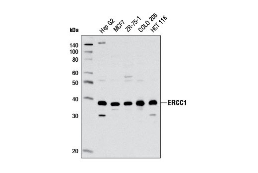 Western blot analysis of extracts from various cell lines using ERCC1 (D61F5) Rabbit mAb.