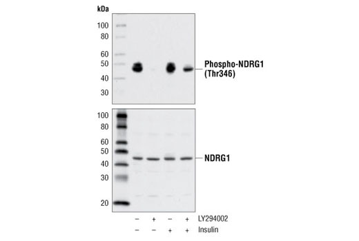 Western blot analysis of extracts from C2C12 cells, untreated or treated with LY294002 #9901, insulin, or both using Phospho-NDRG1 (Thr346) (D98G11) XP<sup>®</sup> Rabbit mAb (upper) or total NDRG1 Antibody #5196 (lower).