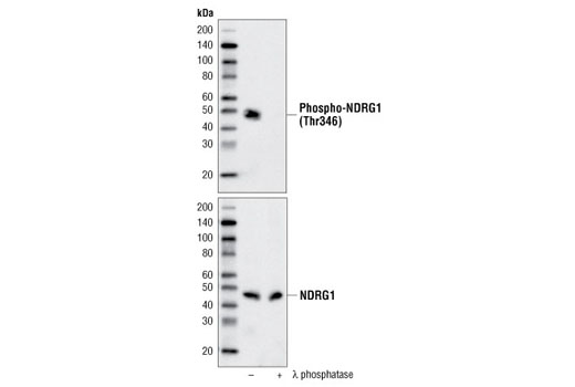 Western blot analysis of extracts from A431 cells treated with hEGF #8916 (100 ng/ml, 30 minutes), with or without calf intestinal phosphatase and λ-phosphatase, using Phospho-NDRG1 (Thr346) (D98G11) XP<sup>®</sup> Rabbit mAb (upper) or total NDRG1 Antibody #5196 (lower).