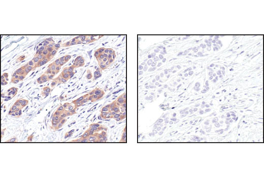 Immunohistochemical analysis of paraffin-embedded human breast carcinoma, using HSP90 (E289) Antibody in the presence of control peptide (left) or antigen-specific peptide (right).