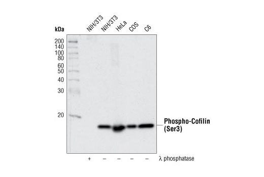 Western blot analysis of NIH/3T3 cells, λ phosphatase-treated or untreated, and various other cell lines, using Phospho-Cofilin (Ser3) (77G2) Rabbit mAb.