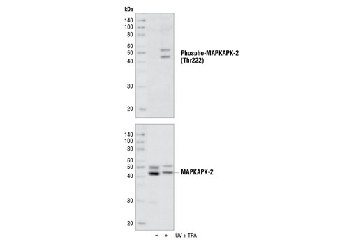 Western blot analysis of extracts from NIH/3T3 cells, untreated (-) or UV- and TPA-treated (+), using Phospho-MAPKAPK-2 (Thr222) (9A7) Rabbit mAb (upper) or MAPKAPK-2 Antibody #3042 (lower).