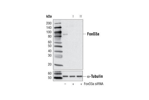 Western blot analysis of extracts from HeLa cells, transfected with 100 nM SignalSilence<sup>®</sup> Control siRNA (Unconjugated) #6568 (-), SignalSilence<sup>®</sup> FoxO3a siRNA I (+) or SignalSilence<sup>®</sup> FoxO3a siRNA II #6303 (+), using FoxO3a (75D8) Rabbit mAb #2497 (upper) or α-Tubulin (11H10) Rabbit mAb #2125 (lower). The FoxO3a (75D8) Rabbit mAb confirms silencing of FoxO3a expression, while the α-Tubulin (11H10) Rabbit mAb is used as a loading control.