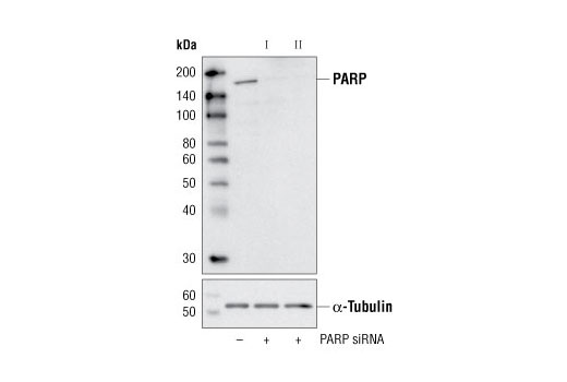 Western blot analysis of extracts from HeLa cells, transfected with 100 nM SignalSilence<sup>®</sup> Control siRNA (Unconjugated) #6568 (-), SignalSilence<sup>®</sup> PARP siRNA I (+) or SignalSilence<sup>®</sup> PARP siRNA II #6305 (+), using PARP (46D11) Rabbit mAb #9532 (upper) or α-Tubulin (11H10) Rabbit mAb #2125 (lower). The PARP (46D11) Rabbit mAb confirms silencing of PARP expression, while the α-Tubulin (11H10) Rabbit mAb is used as a loading control.