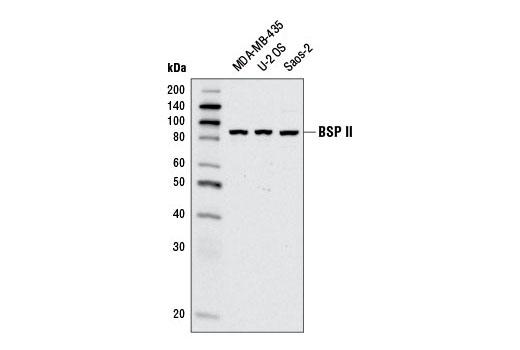 Polyclonal Antibody - BSP II Antibody - Immunoprecipitation, Western Blotting, UniProt ID P21815, Entrez ID 3381 #5468