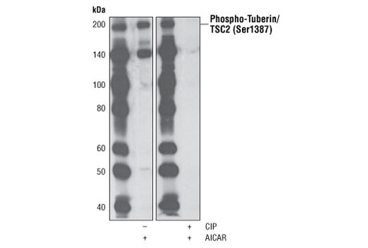 Western blot analysis of extracts from SH-SY5Y cells, treated with AICAR #9944 (2 mM for 30 minutes), using Phospho-Tuberin/TSC2 (Ser1387) Antibody. The phospho-specificity of the antibody was verified by treating the membrane with (+) or without (-) calf intestinal phosphatase (CIP) after western transfer.