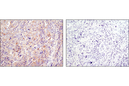 Immunohistochemical analysis of paraffin-embedded human ovarian carcioma using JIP4/SPAG9 (D72F4) XP<sup>®</sup> Rabbit mAb in the presence of control peptide (left) or antigen-specific peptide (right).