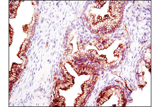 Immunohistochemical analysis of paraffin-embedded human prostate using S100A10 (4E7E10) Mouse mAb.