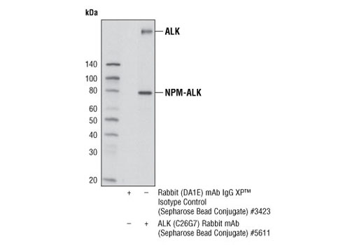 Monoclonal Antibody - ALK (C26G7) Rabbit mAb (Sepharose® Bead Conjugate), UniProt ID Q9UM73, Entrez ID 238 #5611