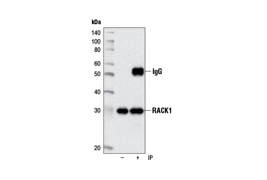 Immunoprecipitation of RACK1 from HeLa cell lysates using</p><p>RACK1 (D59D5) Rabbit mAb. Western blot was performed using the same antibody.
