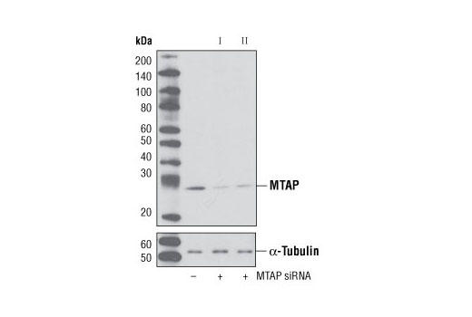 siRNA Transfection s-methyl-5-thioadenosine Phosphorylase Activity