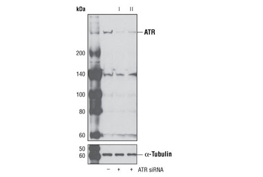 Western blot analysis of extracts from HeLa cells, transfected with 100 nM SignalSilence<sup>®</sup> Control siRNA (Unconjugated) #6568 (-), SignalSilence<sup>®</sup> ATR siRNA I (+) or SignalSilence<sup>®</sup> ATR siRNA II #6289 (+), using ATR Antibody #2790 (upper) or α-Tubulin (11H10) Rabbit mAb #2125 (lower). The ATR Antibody confirms silencing of ATR expression, while the α-Tubulin (11H10) Rabbit mAb is used as a loading control.