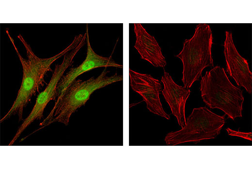Confocal immunofluorescent analysis of SK-MEL-28 cells (left) and HeLa cells (right) using Livin (D61D1) XP<sup>®</sup> Rabbit mAb (green). Actin filaments were labeled with DY-554 phalloidin (red).