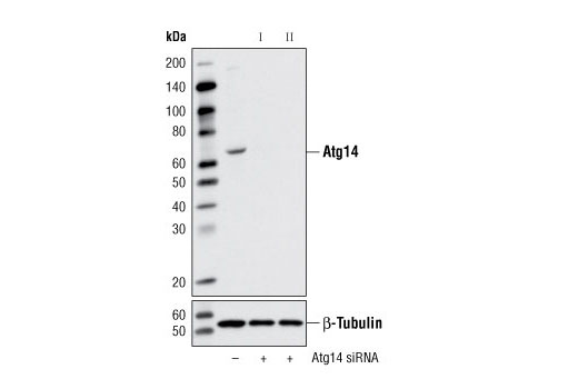 Western blot analysis of extracts from HeLa cells, transfected with 100 nM SignalSilence<sup>®</sup> Control siRNA (Unconjugated) #6568 (-), SignalSilence<sup>®</sup> Atg14 siRNA I #6286 (+) or SignalSilence<sup>®</sup> Atg14 siRNA II #6287 (+), using Atg14 Antibody #5504 (upper) or β-Tubulin (9F3) Rabbit mAb #2128 (lower). The Atg14 Antibody confirms silencing of Atg14 expression, while the β-Tubulin (9F3) Rabbit mAb is used as a loading control.