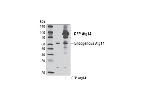 Western blot analysis of extracts from 293T cells, mock transfected (-) or transfected with a GFP-Atg14 construct (+), using Atg14 Antibody. GFP-Atg14 construct was kindly provided by Dr. Qing Zhong, University of California, Berkeley CA.