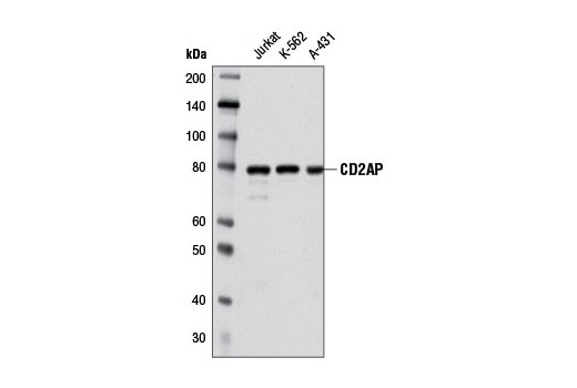 Western blot analysis of extracts from various cell lines using CD2AP (A599) Antibody.