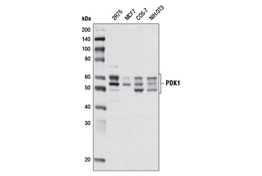 Western blot analysis of extracts from various cell lines using PDK1 (D37A7) Rabbit mAb.