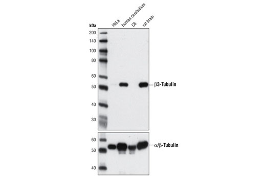 Monoclonal Antibody - β3-Tubulin (D65A4) XP® Rabbit mAb, UniProt ID Q13509, Entrez ID 10381 #5666 - Primary Antibodies