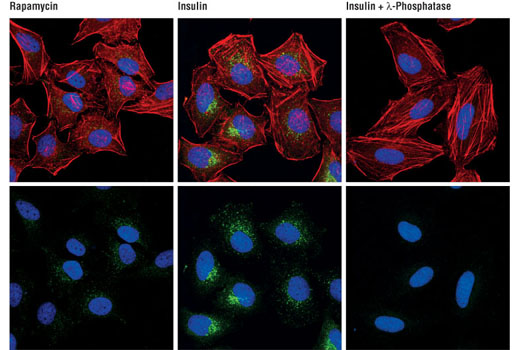 Confocal immunofluorescent analysis of HeLa cells, rapamycin-treated (#9904, 10 μM for 2 hours, left), insulin-treated (150 nM for 6 minutes, middle) or insulin- and λ-phosphatase-treated (right), using Phospho-mTOR (Ser2448) (D9C2) XP<sup>®</sup> Rabbit mAb (green). Actin filaments were labeled with DY-554 phalloidin. Blue pseudocolor = DRAQ5<sup>®</sup> #4084 (fluorescent DNA dye).