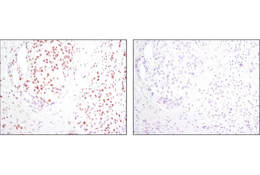 Immunohistochemical analysis of paraffin-embedded human breast carcinoma using HIF-1β/ARNT (D28F3) XP<sup>®</sup> Rabbit mAb in the presence of control peptide (left) or antigen-specific peptide (right).