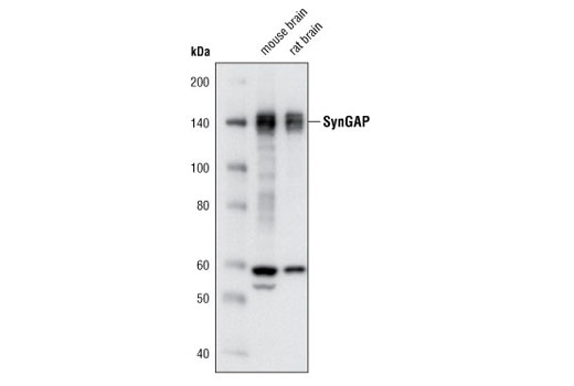 Western blot analysis of extracts from mouse and rat brain using SynGAP (D78B11) Rabbit mAb.