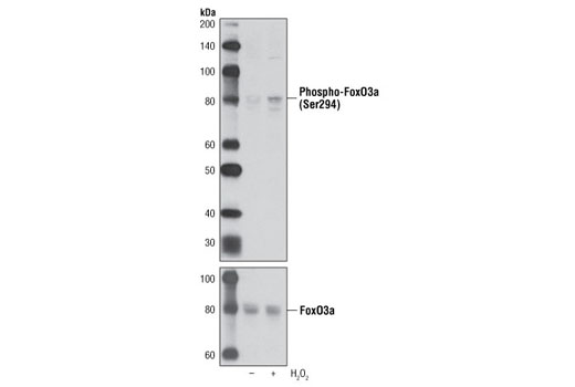 Western blot analysis of extracts from C2C12 cells, untreated or H<sub>2</sub>O<sub>2</sub> treated, using Phospho-FoxO3a (Ser294) Antibody (upper) or FoxO3a (75D8) Rabbit mAb #2497 (lower).