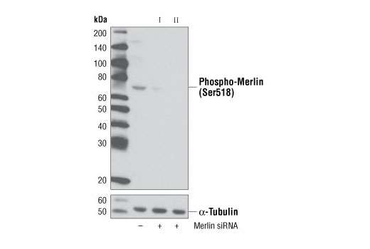 siRNA Transfection Negative Regulation of Protein Kinase Activity - count 20