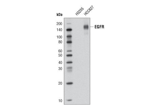 Monoclonal Antibody - EGF Receptor (E746-A750del Specific) (D6B6) XP® Rabbit mAb (Biotinylated), UniProt ID P00533, Entrez ID 1956 #5747, Antibodies to Kinases