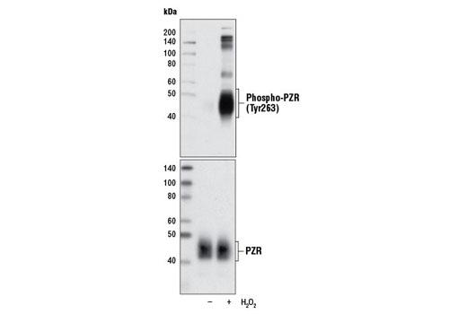 Polyclonal Antibody Western Blotting PZR