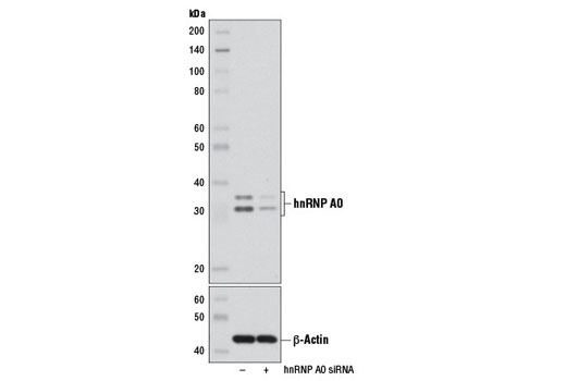 Western blot analysis of extracts from HeLa cells, transfected with SignalSilence<sup>®</sup> Control siRNA (Unconjugated) #6568 (-) or SignalSilence<sup>®</sup> hnRNP A0 siRNA I #6503 (+), using hnRNP A0 (D8A3) XP<sup>®</sup> Rabbit mAb (upper) and β-Actin (13E5) Rabbit mAb #4970 (lower).