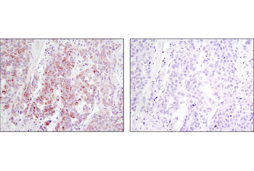 Immunohistochemical analysis of paraffin-embedded human lung carcinoma using DDR1 (D1G6) XP (TM) RmAb in the presence of control peptide (left) or antigen-specific peptide (right).