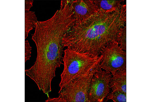 Confocal immunofluorescent analysis of A549 cells using Rab11 (D4F5) XP<sup>®</sup> Rabbit mAb (green). Actin filaments were labeled wtih DY-554 phalloidin (red). Blue pseudocolor = DRAQ5<sup>®</sup> #4084 (fluorescent DNA dye).