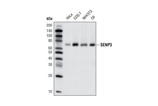 Human Sumo-Specific Protease Activity - count 2