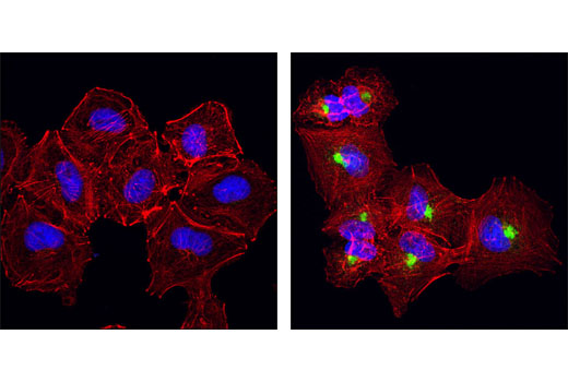 Immunofluorescence Image 1: βIG-H3 (D31B8) XP® Rabbit mAb