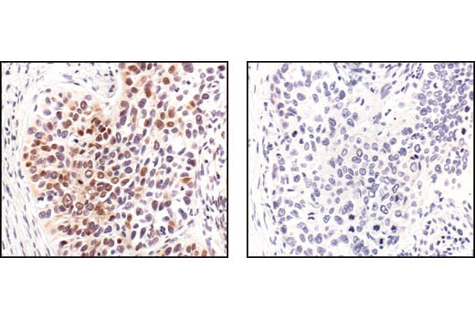 Immunohistochemical analysis of paraffin-embedded human lung carcinoma, using Phospho-p38 MAPK (Thr180/Tyr182) (12F8) Rabbit mAb #4631 preincubated with an irrelevant control peptide (left), or with Phospho-p38 MAPK (Thr180/Tyr182) Blocking Peptide (right).