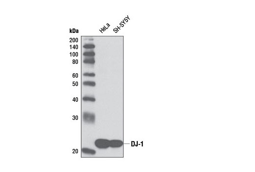 Western blot analysis of extracts from various cell lines and tissue using DJ-1 (D21E11) Rabbit mAb.