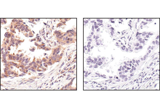 Immunohistochemical analysis of paraffin-embedded human lung carcinoma, using Phospho-S6 Ribosomal Protein (Ser235/236) (91B2) Rabbit mAb #4857 in the presence of control peptide (left) or Phospho-S6 Ribosomal Protein (Ser235/236) Blocking Peptide (right).