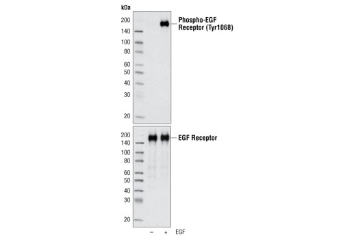 Cell Extract Kit - EGF Receptor Control Cell Extracts - Western Blotting - 150 µl #5634 - Signal Transduction Reagents