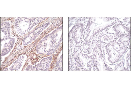 Immunohistochemical analysis of paraffin-embedded human colon carcinoma, using PTEN (138G8) Rabbit mAb #9559 preincubated with a control peptide (left) or with PTEN Blocking Peptide (right).