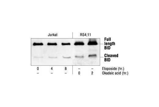 Western blot analysis of extracts from Jurkat cells, untreated or etoposide-treated (25 µM), and RS4;11 cells, untreated or okadaic acid-treated (1 µM), using BID Antibody (Human Specific).
