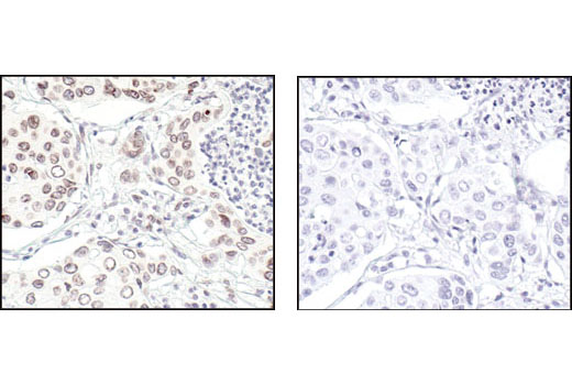 Immunohistochemical analysis of paraffin-embedded human lung carcinoma, using Lamin A/C Antibody in the presence of control peptide (left) or antigen-specific peptide (right).