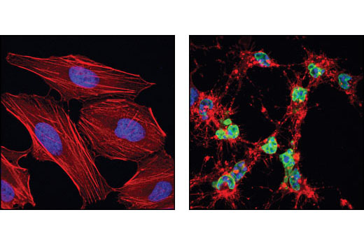 Confocal immunofluorescent analysis of HeLa cells, untreated (left) or staurosporine-treated (right), using Cleaved Lamin A (Small Subunit) Antibody (green). Actin filaments have been labeled using DY-554 phalloidin (red). Blue pseudocolor = DRAQ5<sup>®</sup> #4084 (fluorescent DNA dye).
